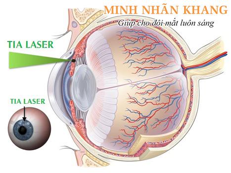 Điều trị cườm nước bằng phương pháp laser